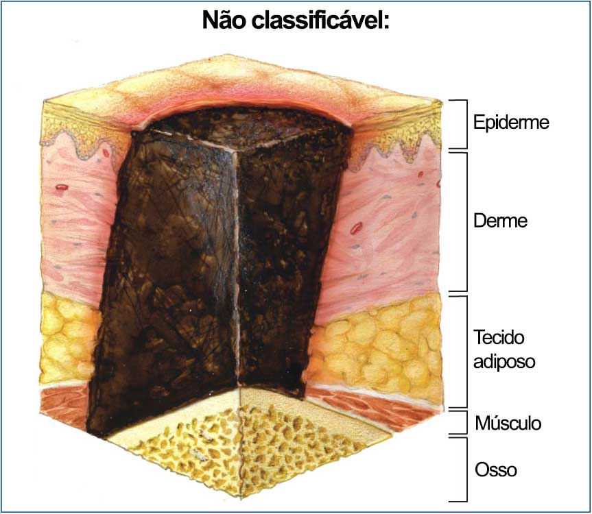 NPUAP-sem-classificacao