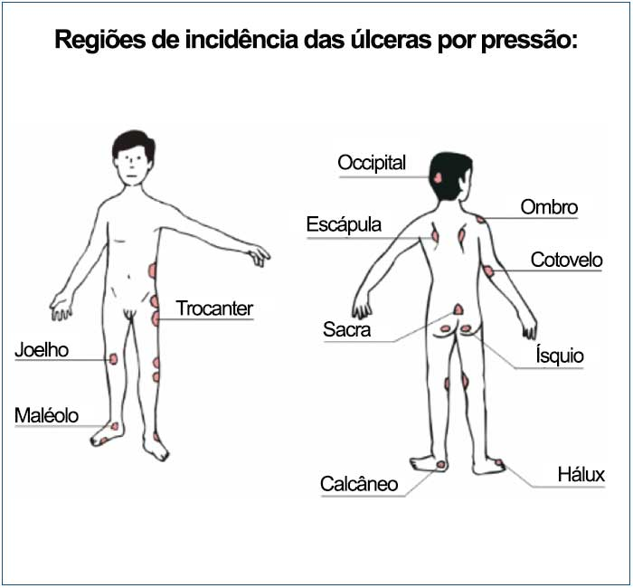 regiores-de-incidencia