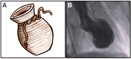 Síndrome de Takotsubo - Ilustração