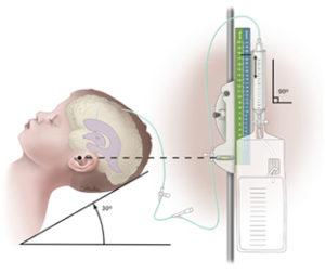 Derivação ventricular externa