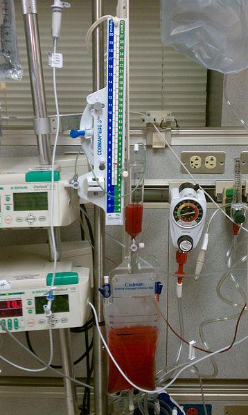 Derivação ventricular externa - equipamento