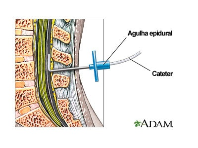 Localização do Cateter Epidural