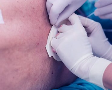 Manejo da dor com cateter epidural