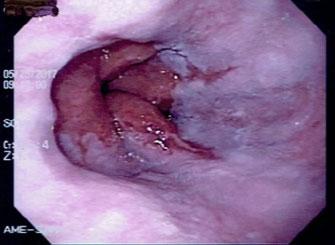 Figura 3 - Doença do Refluxo Gastroesofágico