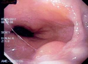 Figura 8 - Doença do Refluxo Gastroesofágico
