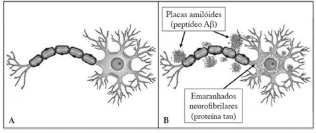 Placas amilóides e emaranhados neurofibrilades